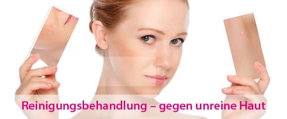 Akne Behandlung Kosmetik Wiesbaden